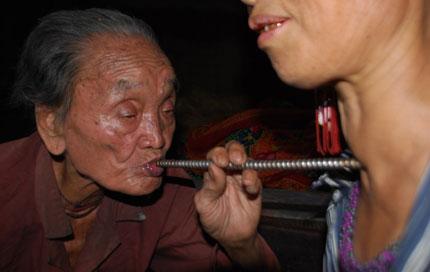 """Bí hiểm thuật dùng ống """"hút"""" bệnh của kỳ nhân 108 tuổi  1"""